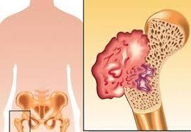 Rak kostiju